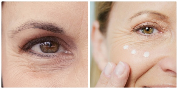 Cần chống lão hóa da vùng mắt để giữ đôi mắt luôn trẻ trung, rạng ngời