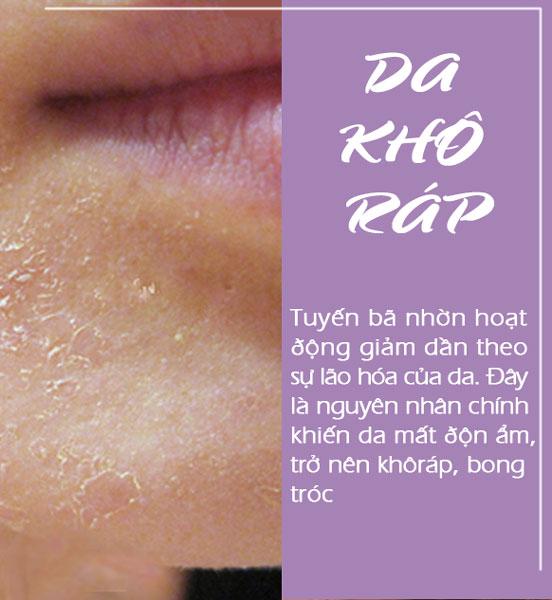 dau-hieu-lao-hoa-da-(2)