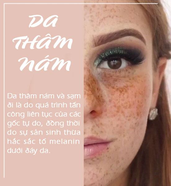 dau-hieu-lao-hoa-da